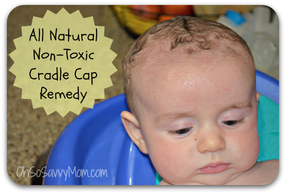 All Natural Non Toxic Cradle Cap Remedy